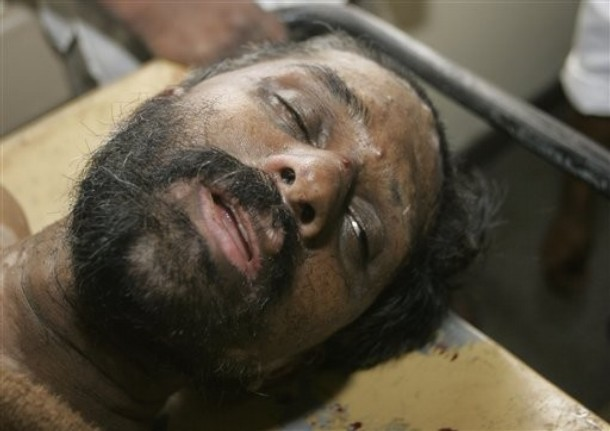 Poddala Jayantha, the secretary of the Sri Lanka Working Journalists' Association, lies on a stretcher at a hospital in Colombo, Sri Lanka, Monday, June 1, 2009. A media rights group says that the  Sri Lankan journalist and a press freedom campaigner has been abducted and assaulted while returning from work. (Photo Courtesy AP - Eranga Jayawardena)